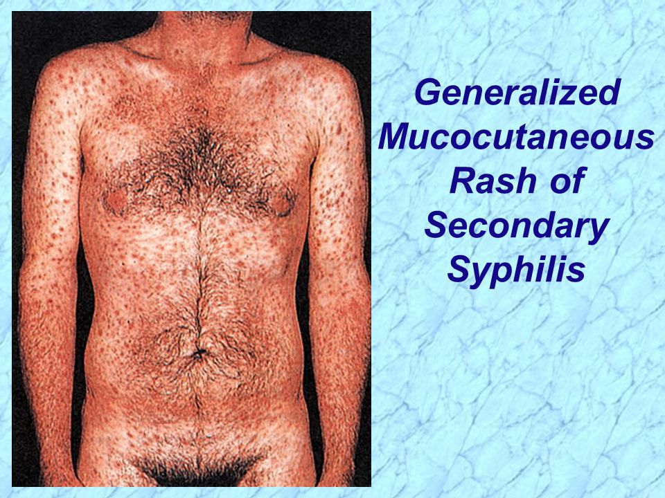 Generalized Mucocutaneous Rash of Secondary Syphilis