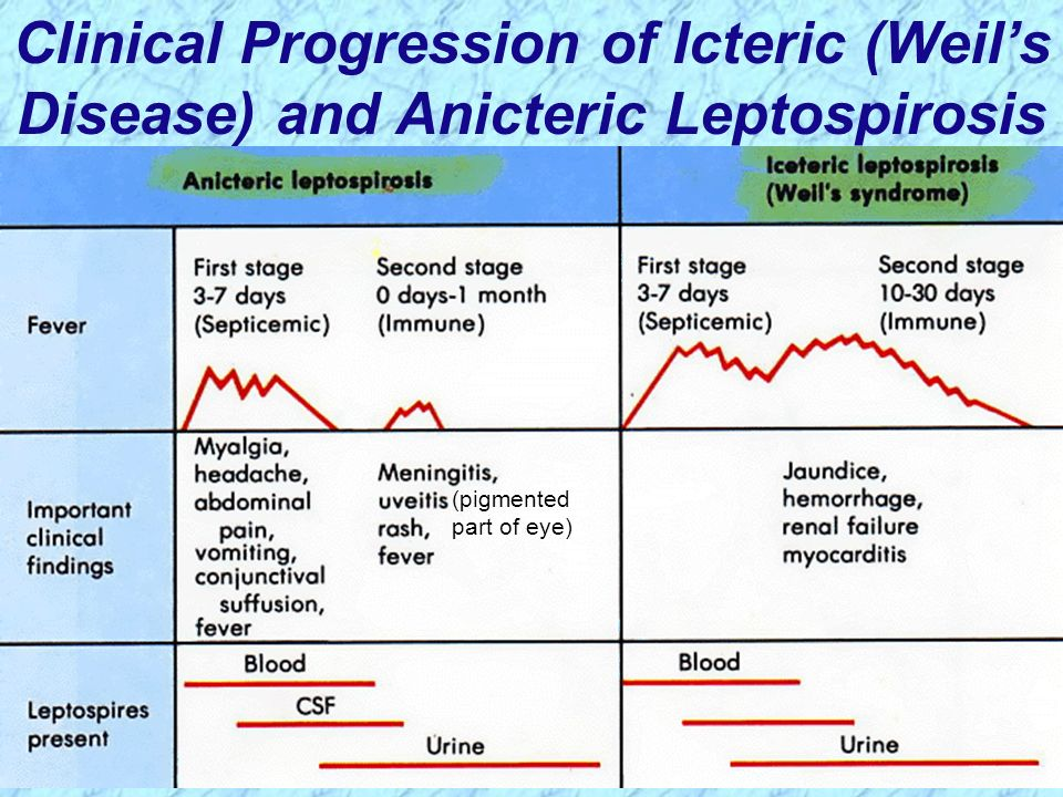 Clinical Progression of Icteric (Weil's Disease) and Anicteric Leptospirosis
