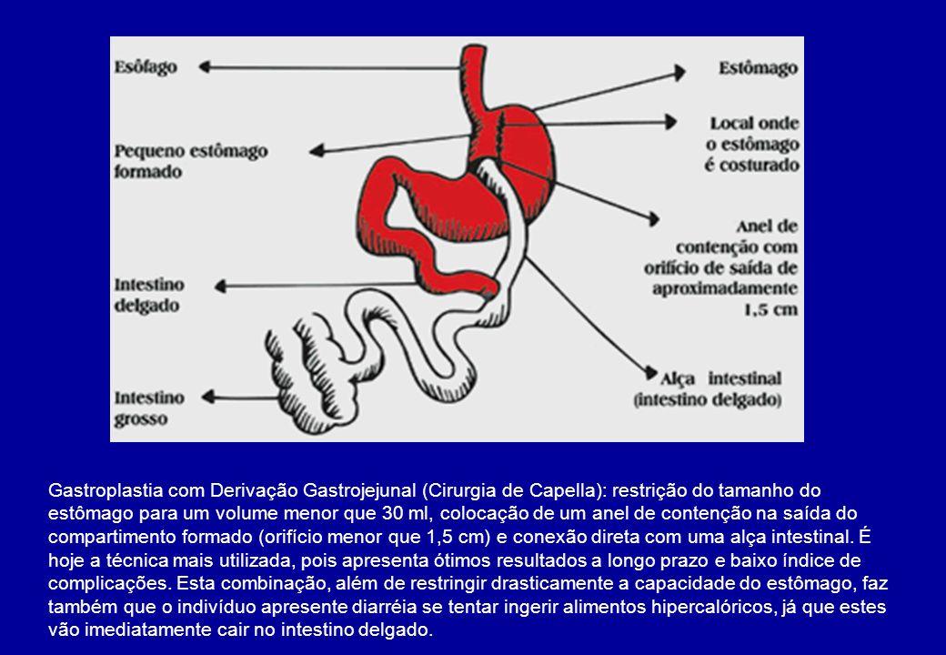 Gastroplastia com Derivação Gastrojejunal (Cirurgia de Capella): restrição do tamanho do estômago para um volume menor que 30 ml, colocação de um anel de contenção na saída do compartimento formado (orifício menor que 1,5 cm) e conexão direta com uma alça intestinal.
