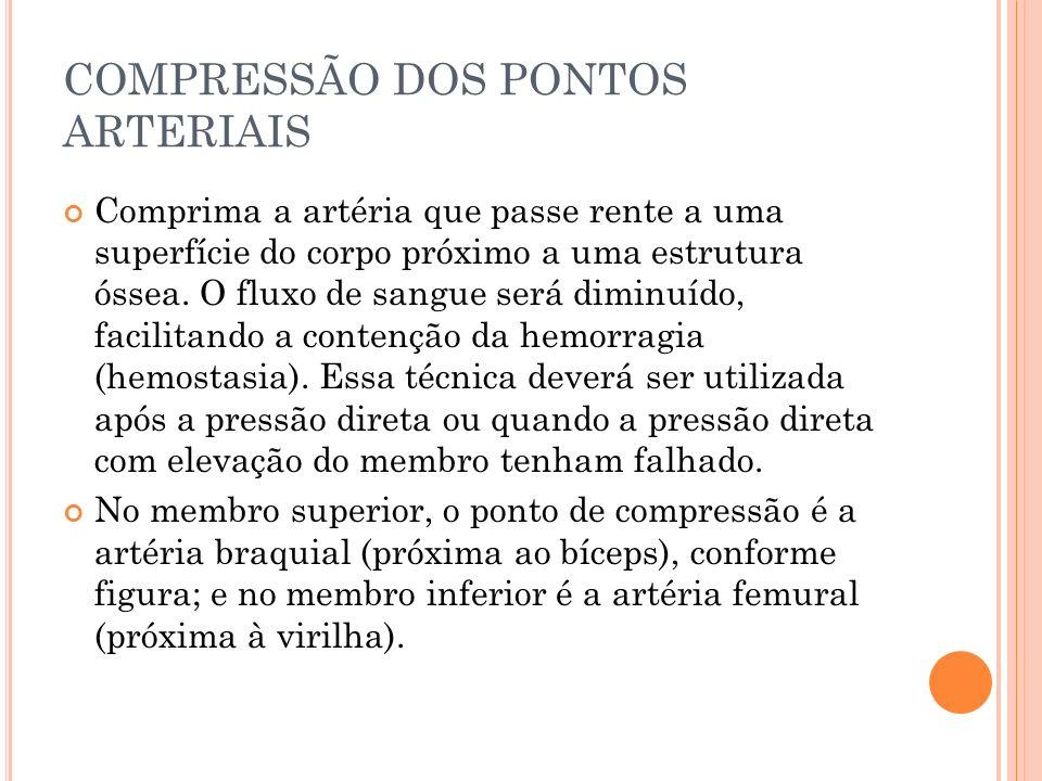 COMPRESSÃO DOS PONTOS ARTERIAIS