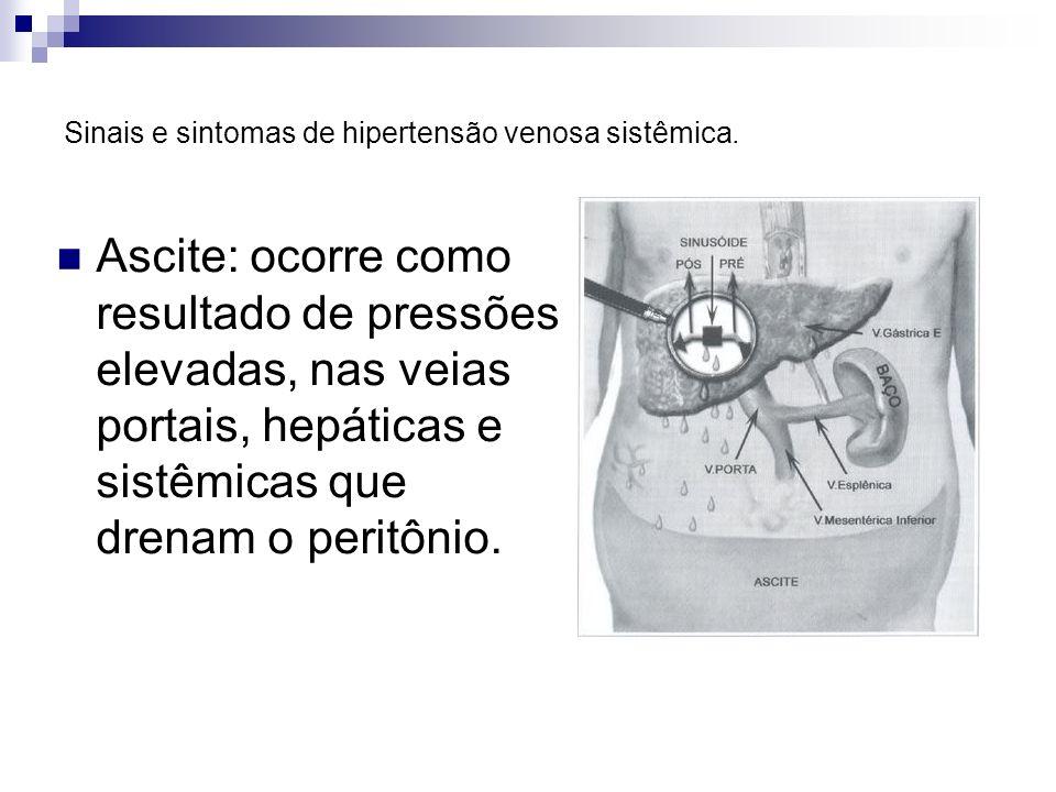 Sinais e sintomas de hipertensão venosa sistêmica.