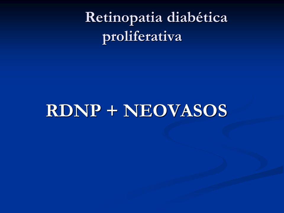 Retinopatia diabética proliferativa