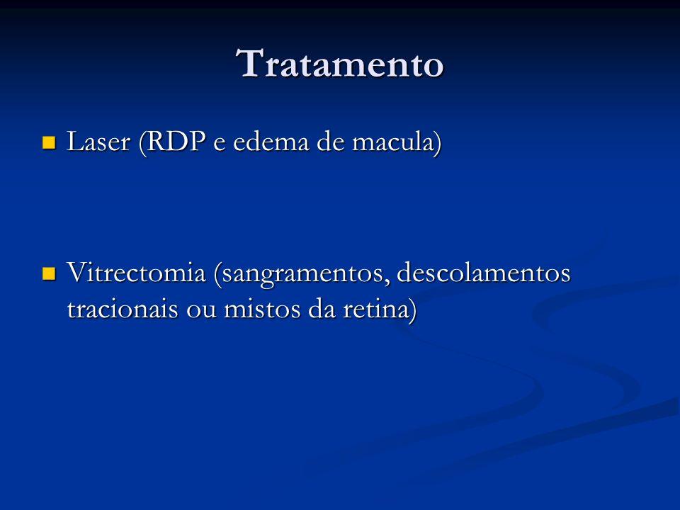 Tratamento Laser (RDP e edema de macula)