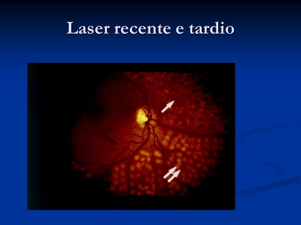 Laser recente e tardio