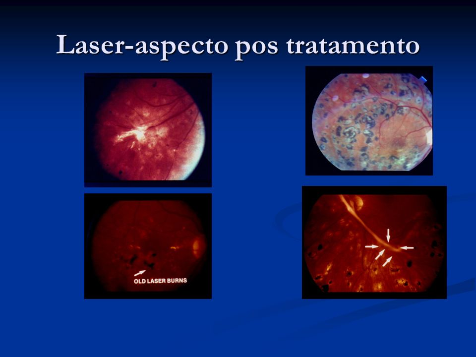 Laser-aspecto pos tratamento