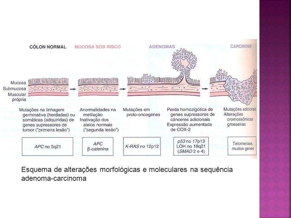Esquema de alterações morfológicas e moleculares na sequência adenoma-carcinoma