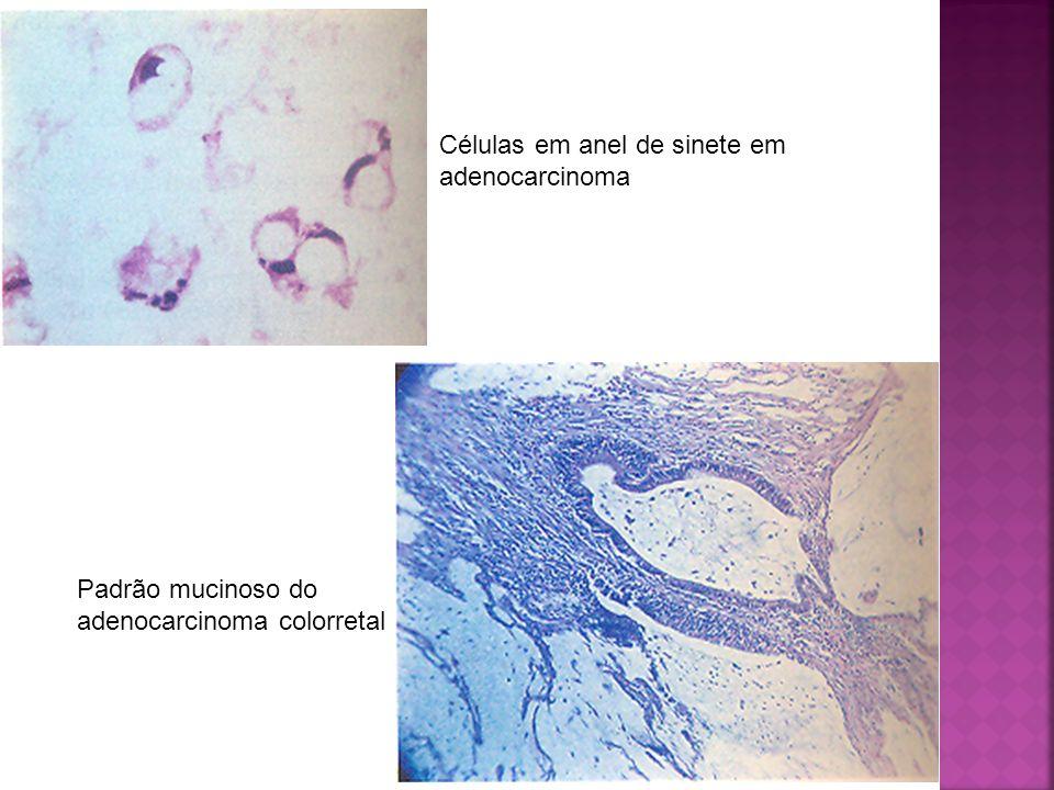 Células em anel de sinete em adenocarcinoma