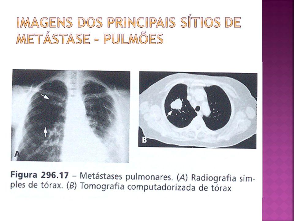 Imagens dos principais sítios de metástase - pulmões