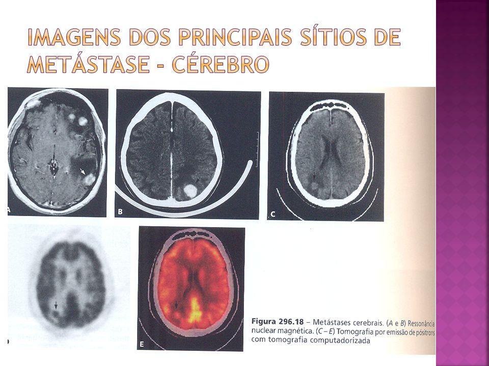 Imagens dos principais sítios de metástase - cérebro