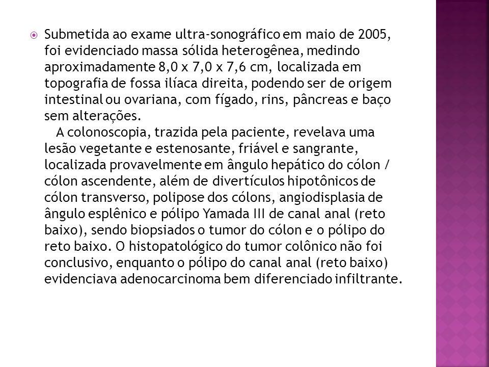 Submetida ao exame ultra-sonográfico em maio de 2005, foi evidenciado massa sólida heterogênea, medindo aproximadamente 8,0 x 7,0 x 7,6 cm, localizada em topografia de fossa ilíaca direita, podendo ser de origem intestinal ou ovariana, com fígado, rins, pâncreas e baço sem alterações.