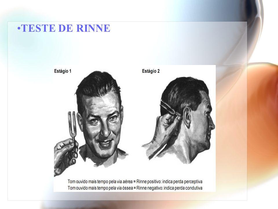 TESTE DE RINNE