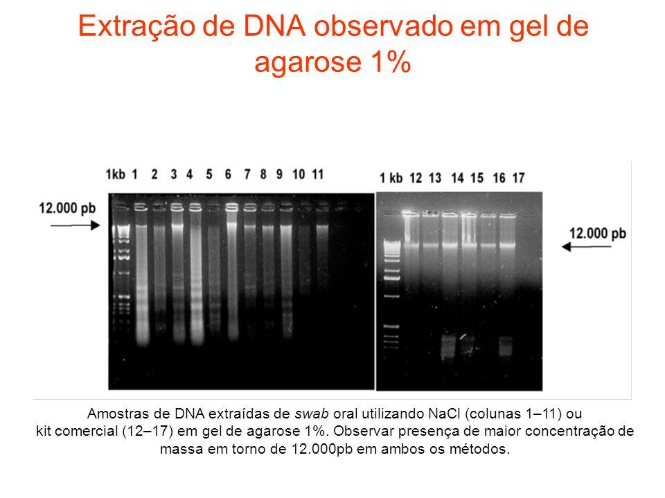 Extração de DNA observado em gel de agarose 1%