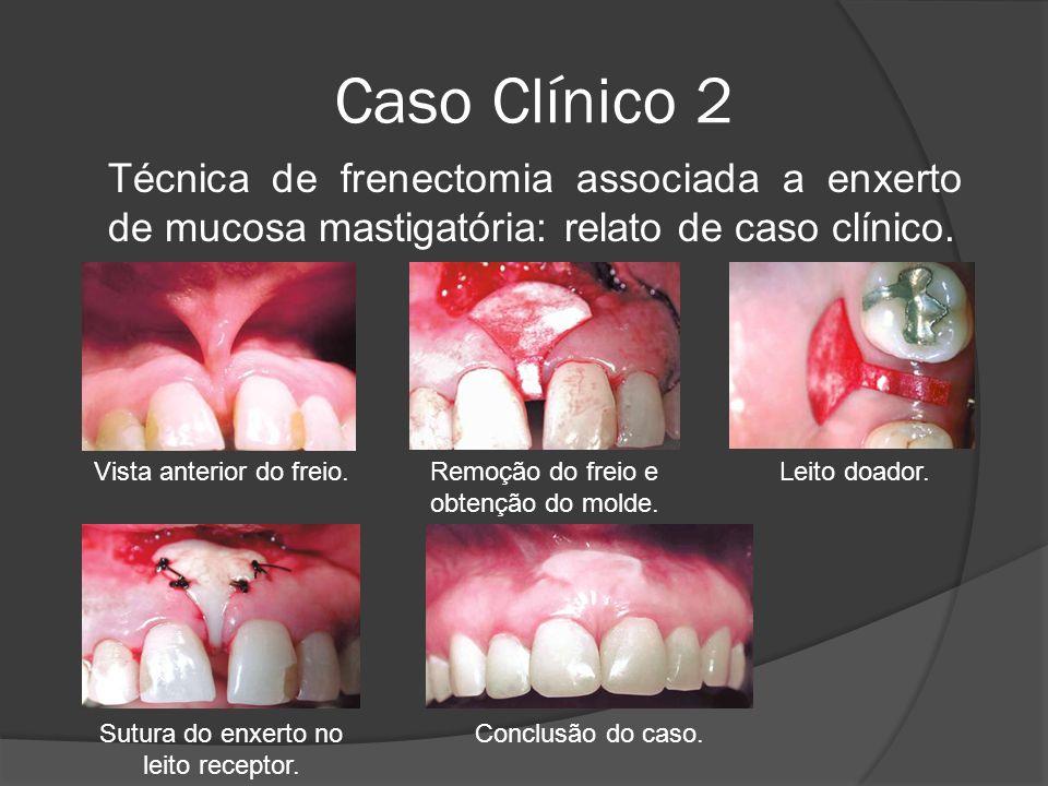 Caso Clínico 2 Técnica de frenectomia associada a enxerto de mucosa mastigatória: relato de caso clínico.