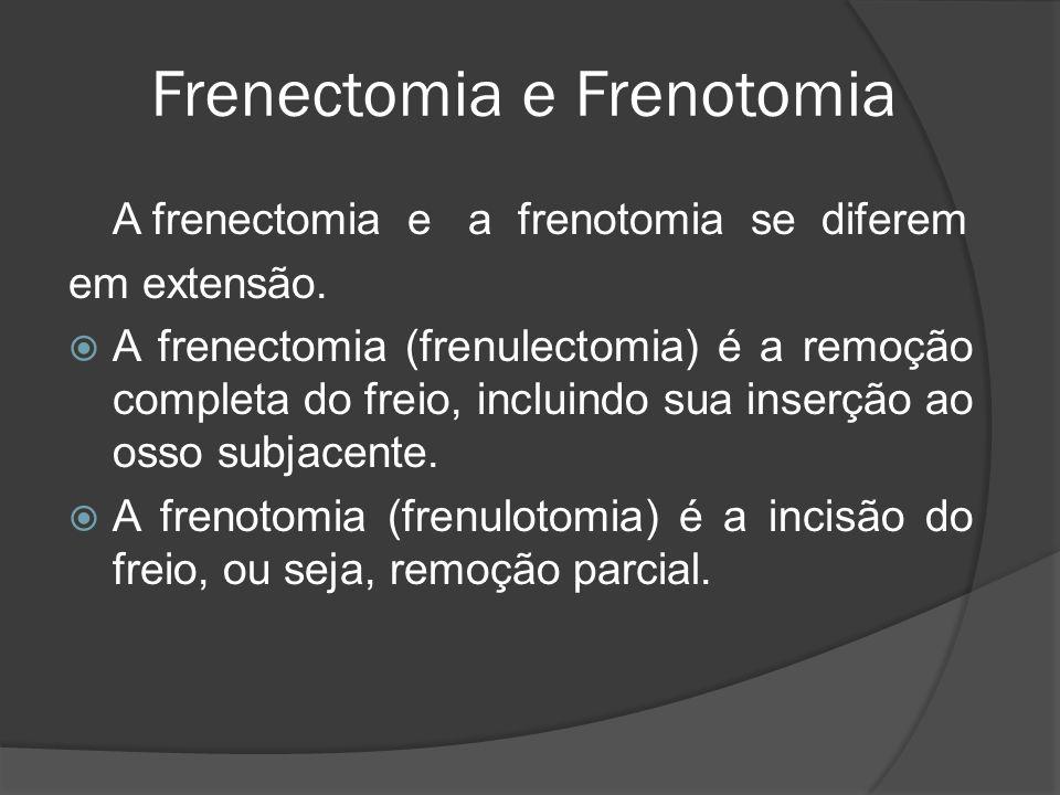 Frenectomia e Frenotomia