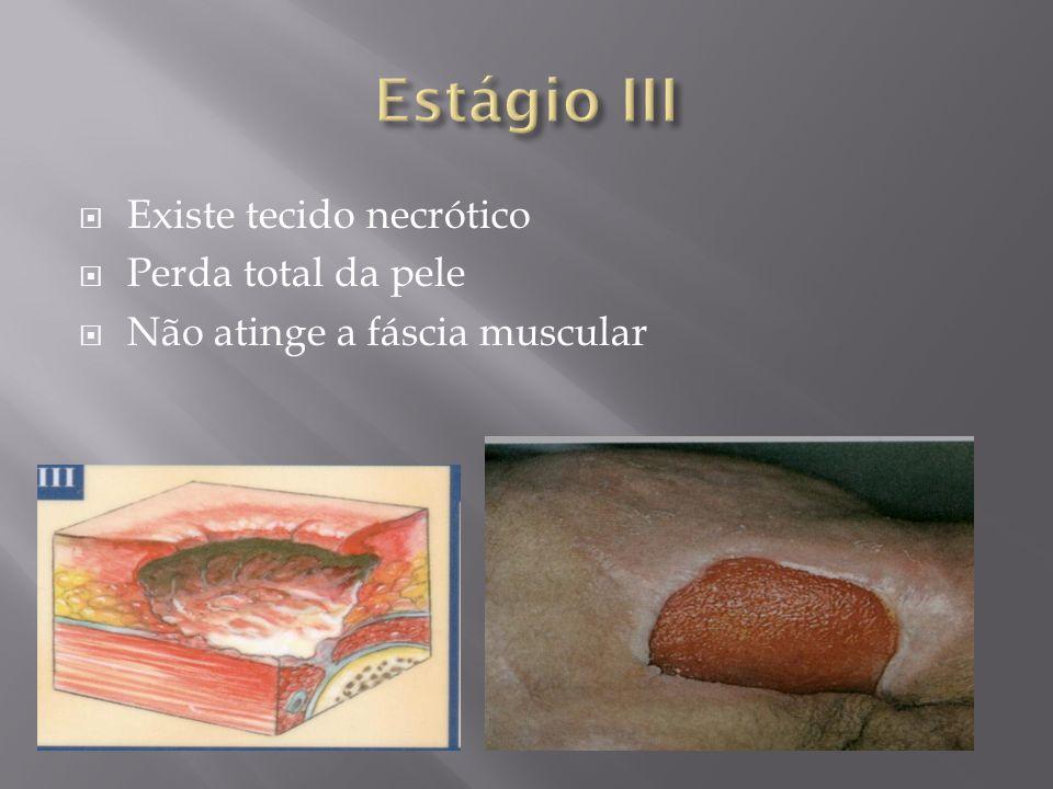 Estágio III Existe tecido necrótico Perda total da pele