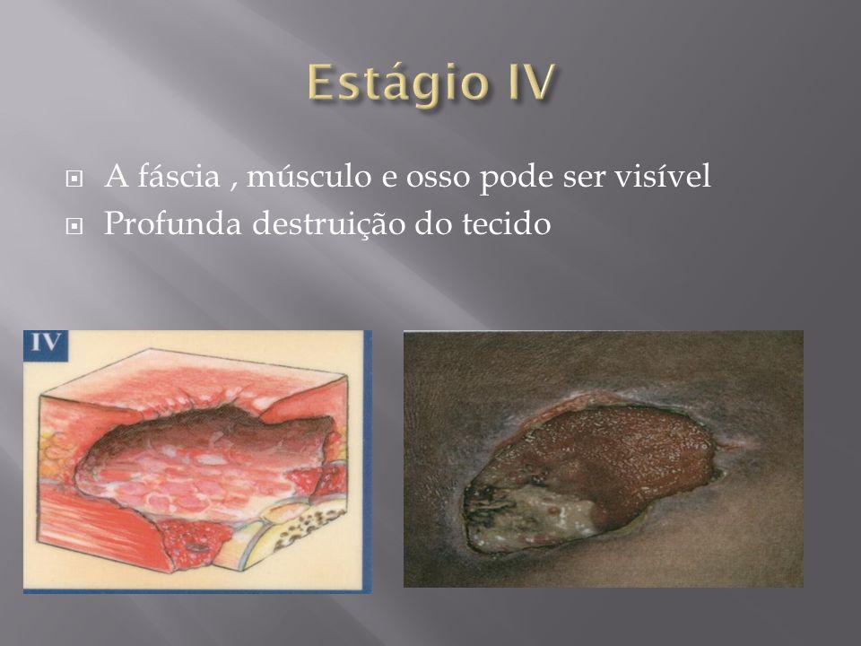 Estágio IV A fáscia , músculo e osso pode ser visível