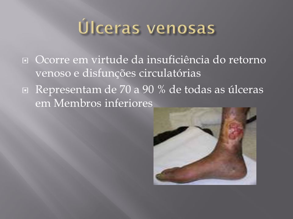 Úlceras venosas Ocorre em virtude da insuficiência do retorno venoso e disfunções circulatórias.