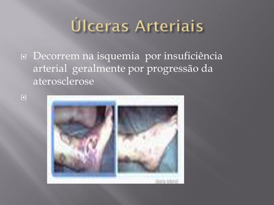 Úlceras Arteriais Decorrem na isquemia por insuficiência arterial geralmente por progressão da aterosclerose.