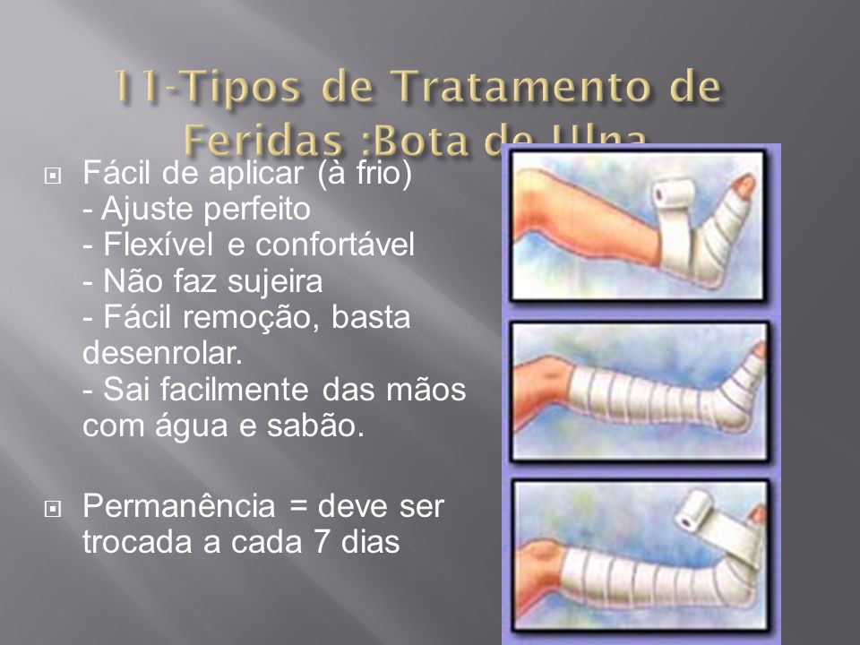 11-Tipos de Tratamento de Feridas :Bota de Ulna