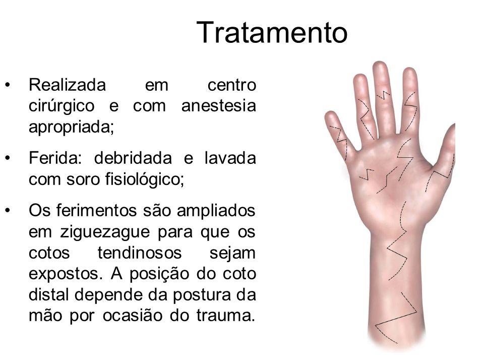 Tratamento Realizada em centro cirúrgico e com anestesia apropriada;