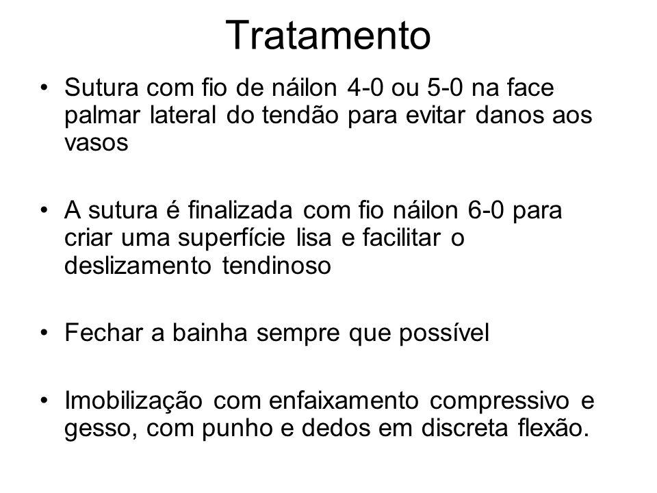 Tratamento Sutura com fio de náilon 4-0 ou 5-0 na face palmar lateral do tendão para evitar danos aos vasos.