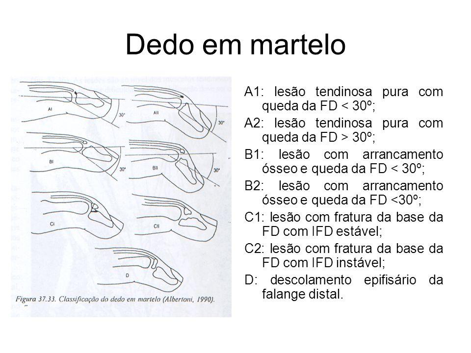 Dedo em martelo A1: lesão tendinosa pura com queda da FD < 30º;
