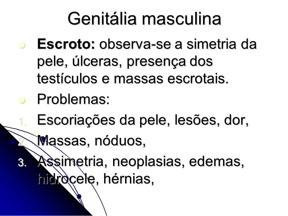Genitália masculina Escroto: observa-se a simetria da pele, úlceras, presença dos testículos e massas escrotais.