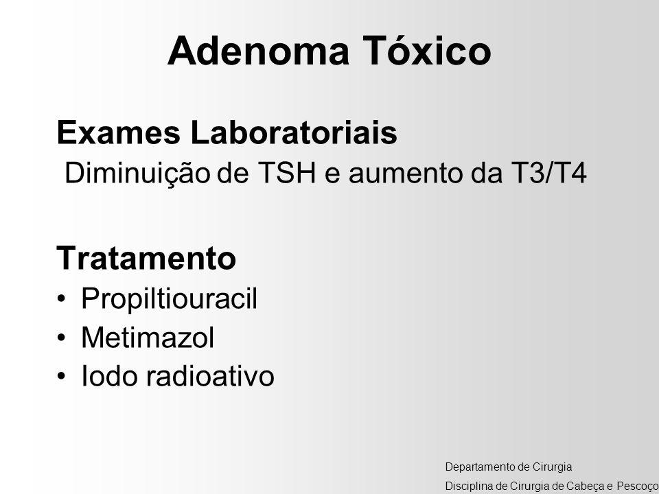 Adenoma Tóxico Exames Laboratoriais Tratamento