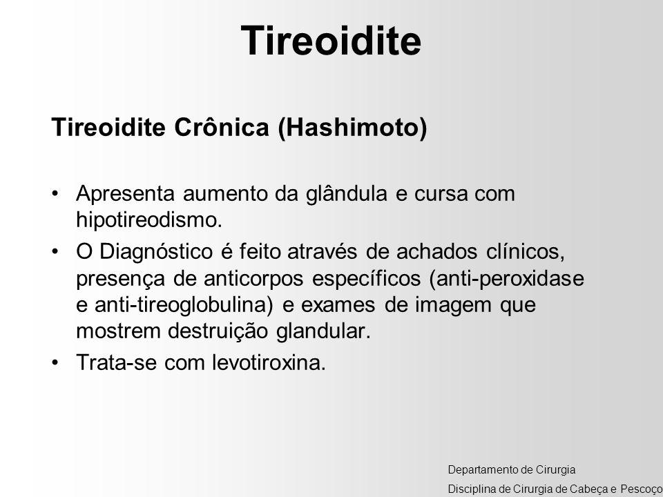 Tireoidite Tireoidite Crônica (Hashimoto)