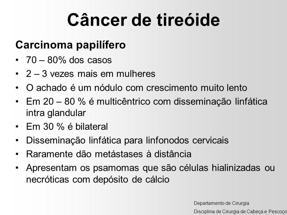 Câncer de tireóide Carcinoma papilífero 70 – 80% dos casos
