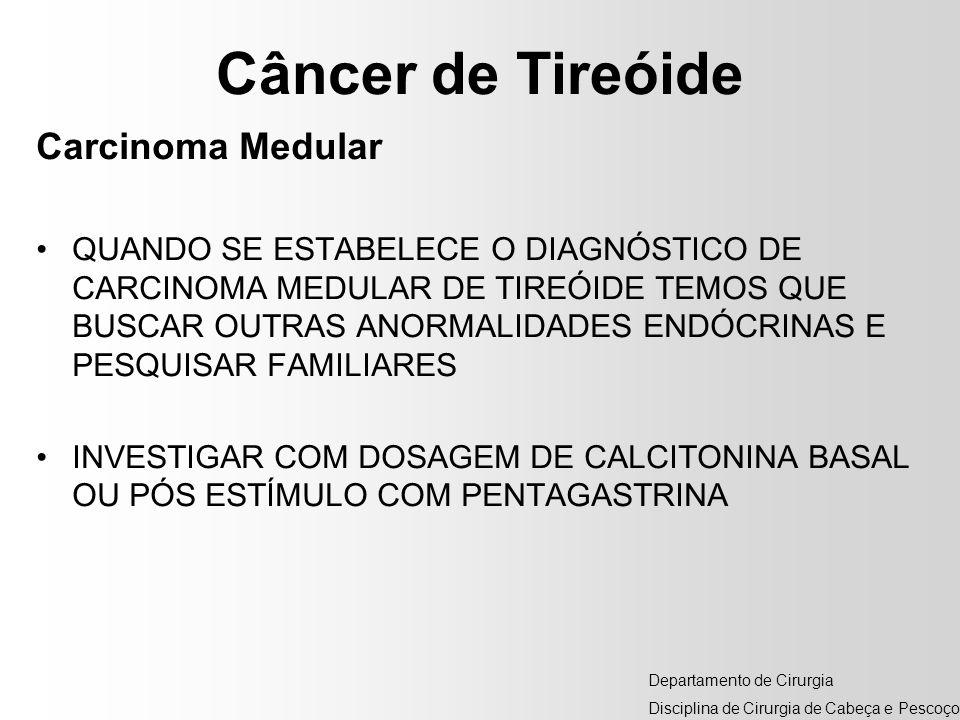 Câncer de Tireóide Carcinoma Medular