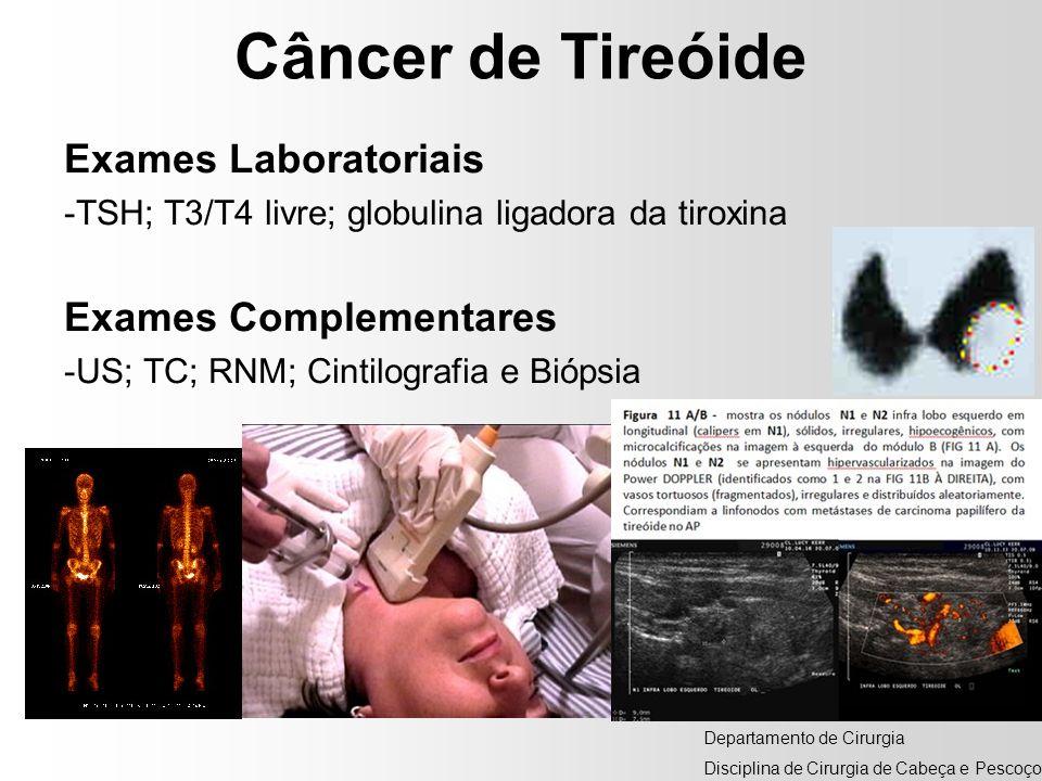 Câncer de Tireóide Exames Laboratoriais Exames Complementares