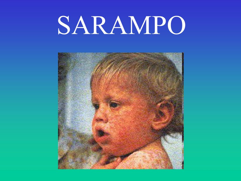 SARAMPO