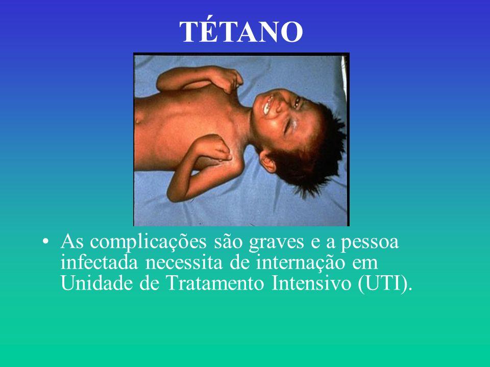 TÉTANO As complicações são graves e a pessoa infectada necessita de internação em Unidade de Tratamento Intensivo (UTI).