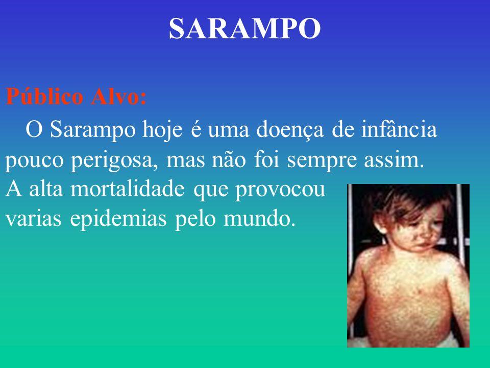SARAMPO Público Alvo: O Sarampo hoje é uma doença de infância pouco perigosa, mas não foi sempre assim.