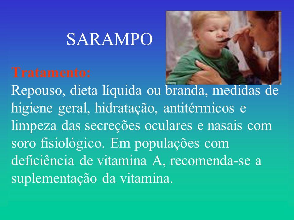 SARAMPO Tratamento: Repouso, dieta líquida ou branda, medidas de higiene geral, hidratação, antitérmicos e limpeza das secreções oculares e nasais com soro fisiológico.