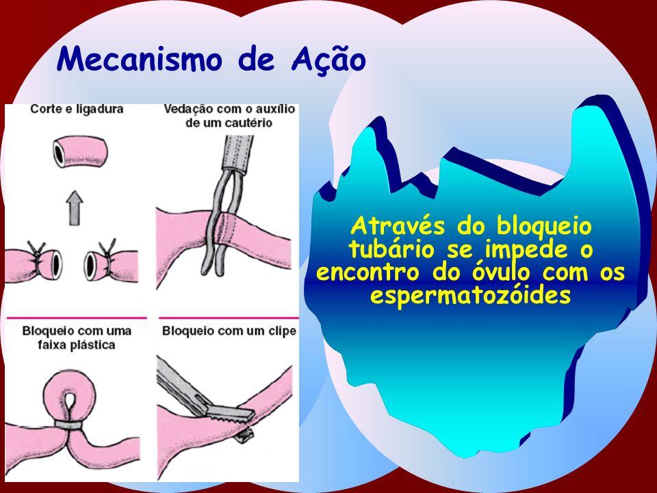 Mecanismo de Ação Através do bloqueio tubário se impede o encontro do óvulo com os espermatozóides