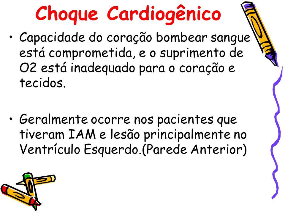 Choque Cardiogênico Capacidade do coração bombear sangue está comprometida, e o suprimento de O2 está inadequado para o coração e tecidos.