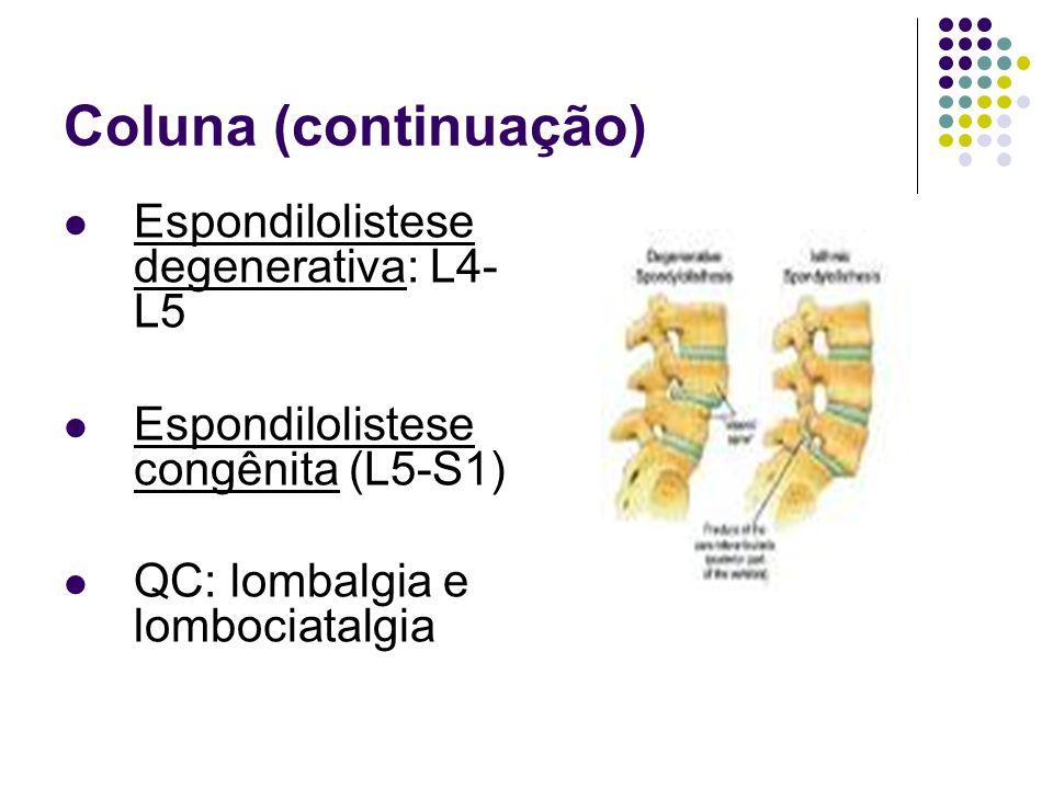 Coluna (continuação) Espondilolistese degenerativa: L4-L5