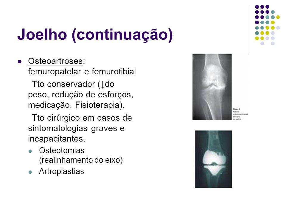 Joelho (continuação) Osteoartroses: femuropatelar e femurotibial