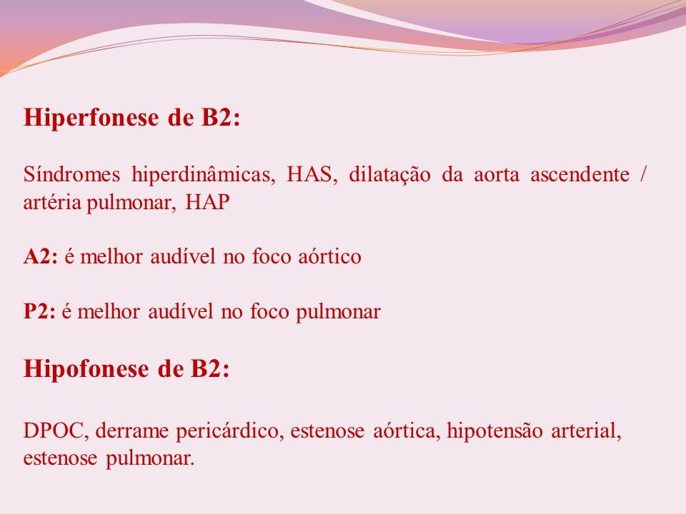 Hiperfonese de B2: Síndromes hiperdinâmicas, HAS, dilatação da aorta ascendente / artéria pulmonar, HAP.