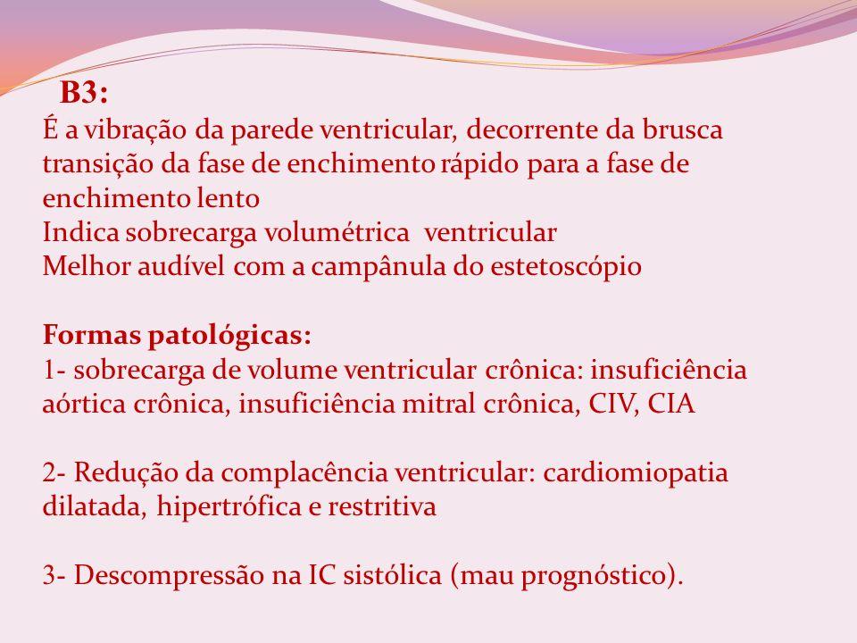 B3: É a vibração da parede ventricular, decorrente da brusca transição da fase de enchimento rápido para a fase de enchimento lento Indica sobrecarga volumétrica ventricular Melhor audível com a campânula do estetoscópio