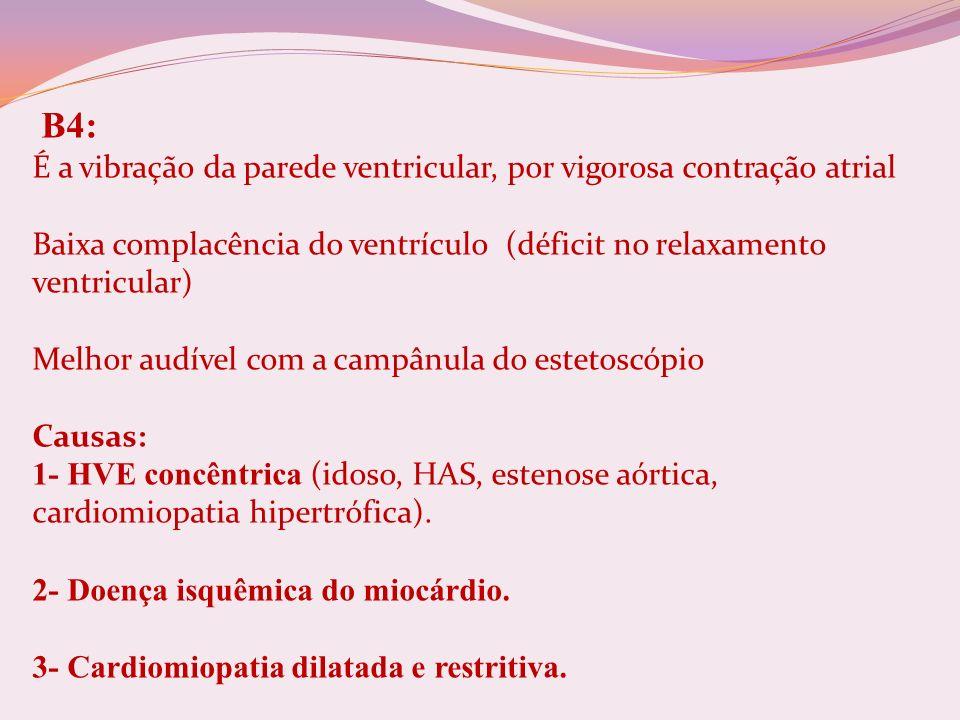 B4: É a vibração da parede ventricular, por vigorosa contração atrial