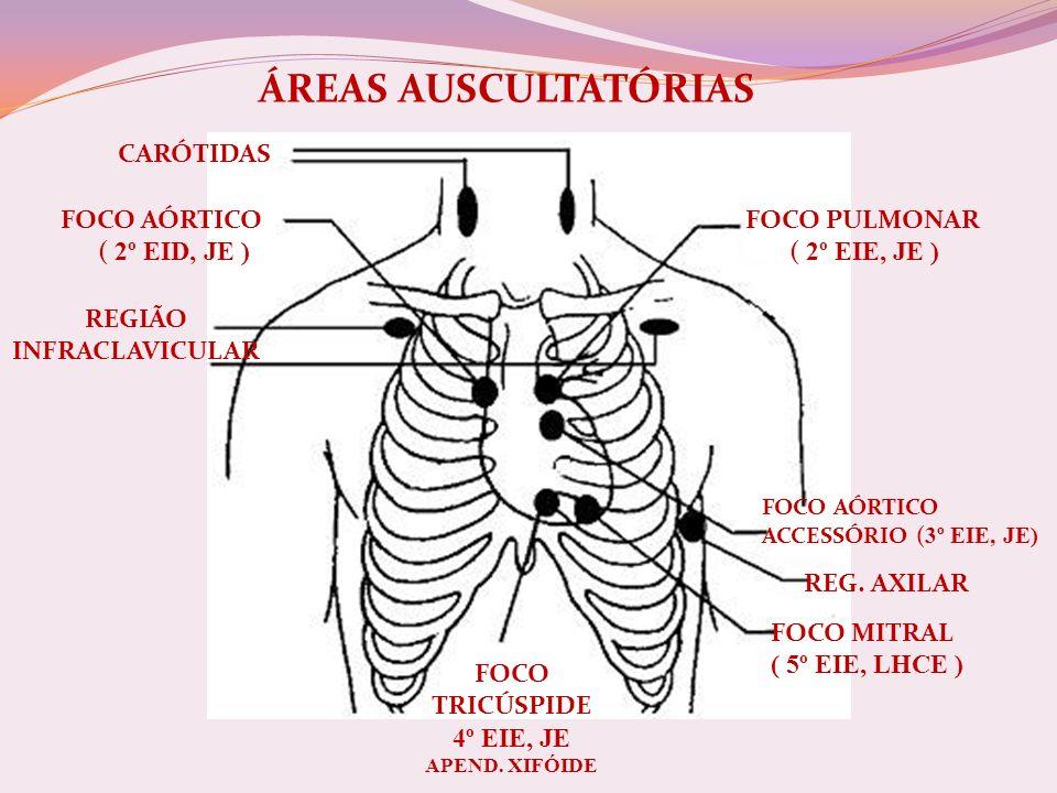 ÁREAS AUSCULTATÓRIAS CARÓTIDAS FOCO AÓRTICO ( 2º EID, JE )