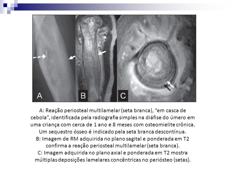 A: Reação periosteal multilamelar (seta branca), em casca de cebola , identificada pela radiografia simples na diáfise do úmero em uma criança com cerca de 1 ano e 8 meses com osteomielite crônica. Um sequestro ósseo é indicado pela seta branca descontínua.