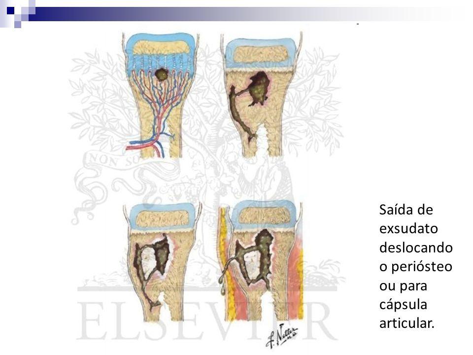 Saída de exsudato deslocando o periósteo ou para cápsula articular.