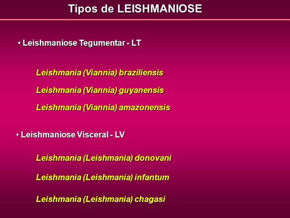 Tipos de LEISHMANIOSE Leishmaniose Tegumentar - LT