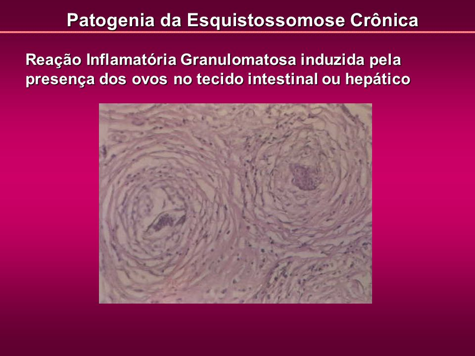 Patogenia da Esquistossomose Crônica