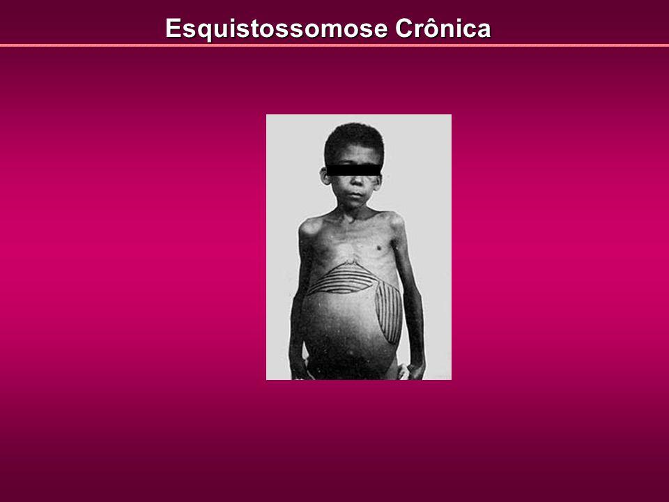 Esquistossomose Crônica