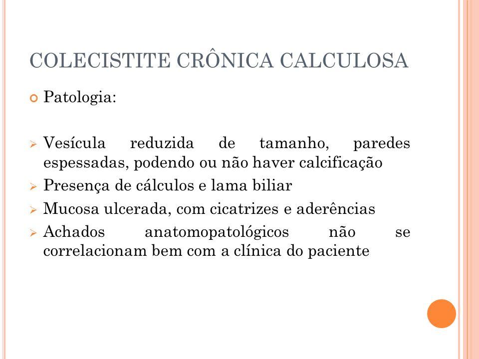 COLECISTITE CRÔNICA CALCULOSA